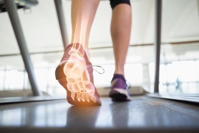 Funktionstraining, Frau auf dem Laufband, Fußknochen